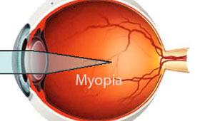 myopia ali kratkovidnost